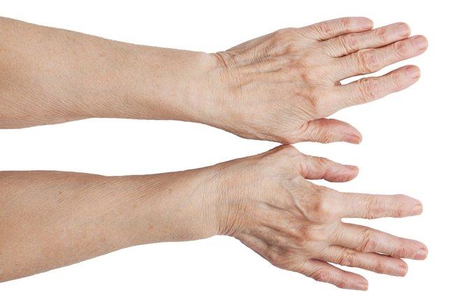 Возрастная кожа рук