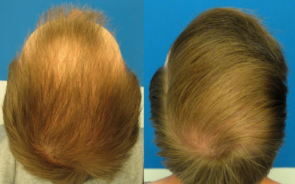 Результат восстановления волос. Alerana