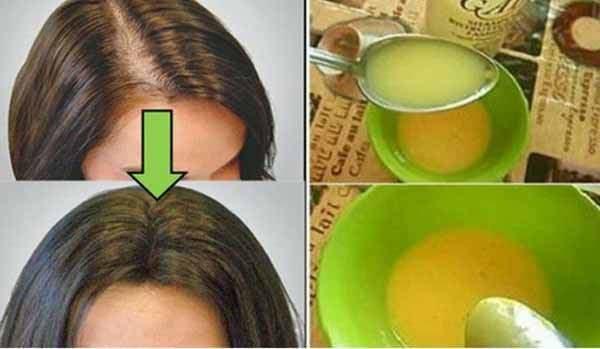 инъекции витаминов группы в для волос